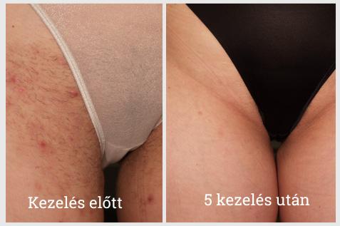 Gyantázás Szőrtüszőgyulladások? - Bőrbetegségek
