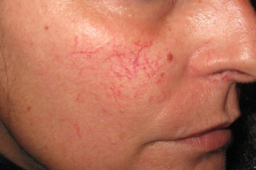 Atópiás dermatitisz tünetei és kezelése - HáziPatika