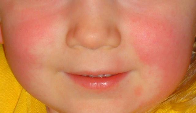 milyen vörös foltoktól az arcon orvosság a pikkelysömörhöz a gyógyszertárban