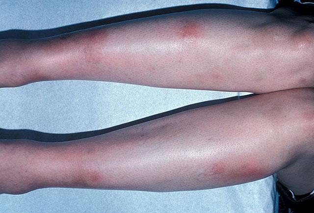 Gopalan-szindróma: a láb tetején égő, okok és kezelés