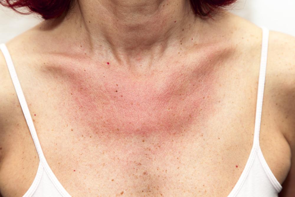 pikkelysömör súlyosbodásának kezelése otthon kezelés a kaukázusi ásványvizekben sárral pikkelysömörhöz