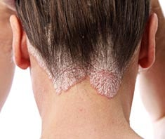 gyógyszerek a tenyér pikkelysömörének kezelésére vörös foltok a bőrön, amikor megérintik