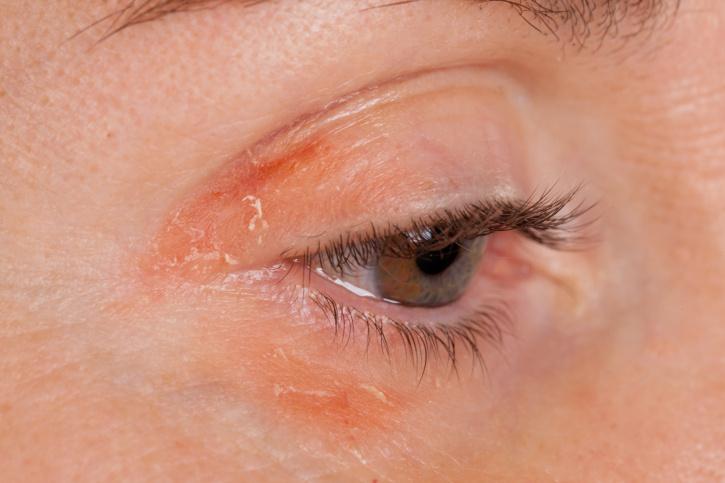 pikkelysömör kezelésére a nyakon kis vörös folt az arcon az erekből