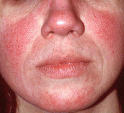 szimmetrikus vörös foltok az arcon hámlanak csiga pikkelysömör kezelése otthon
