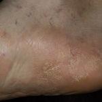 Hogyan kell kezelni a psoriasis hidrogén-peroxiddal - Köszvény November