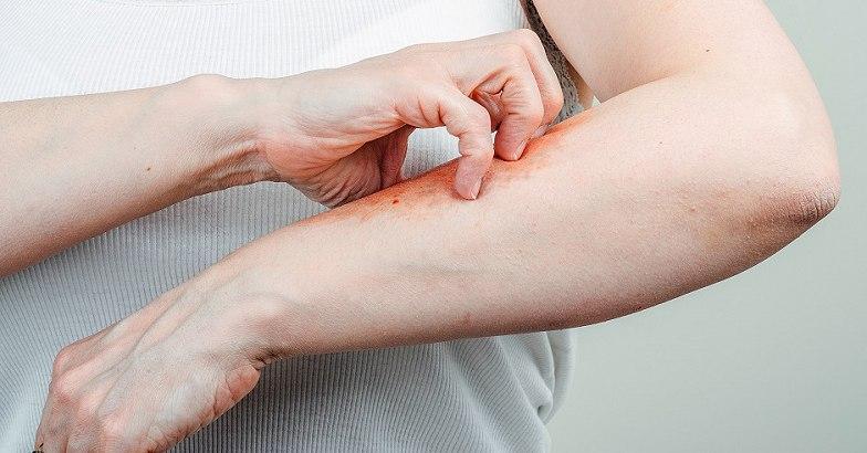 vélemények a pikkelysömör kezeléséről piros, duzzadt folt a lábán