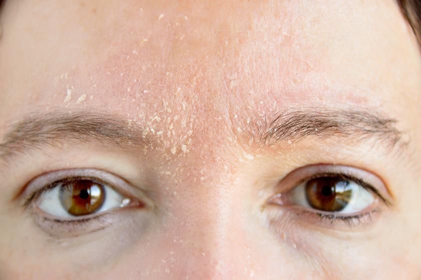 bőr az arcon vörös foltokkal és hámlással