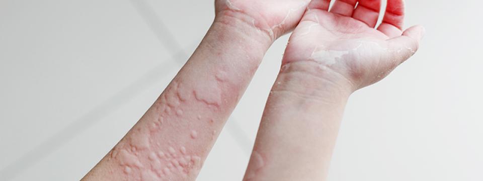 Kézízületek kezelése időskorúaknál, A viszketés a kezek és a vörösség - Betegség