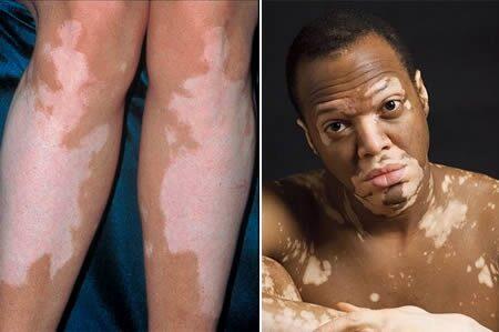 vörös foltok és hámlás az arcon férfiaknál vörös foltok a hónalj alatt és a karokon