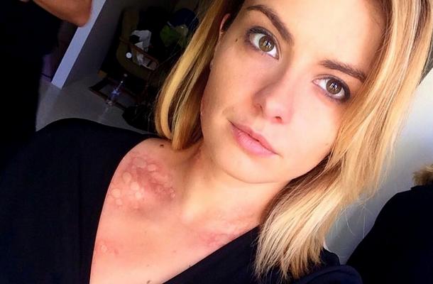 Miért törtek az arcok az arcon és mit lehet tenni otthon? - Vasculitis November
