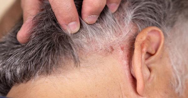 a pikkelysmr kezelsre a fejen otthon vörös duzzadt folt a karon