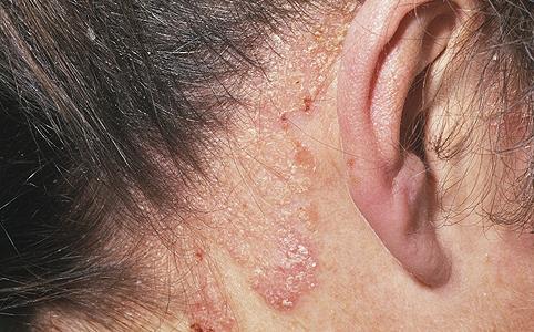Psoriasis Fülöp érintkező