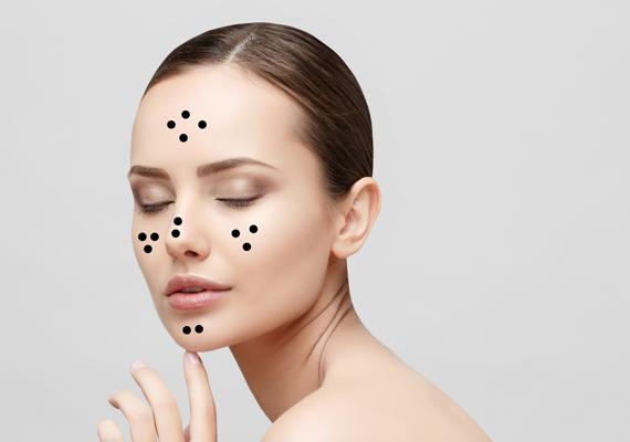 ideiglenes vörös foltok az arcon hol kell pikkelysömör kezelésére adler