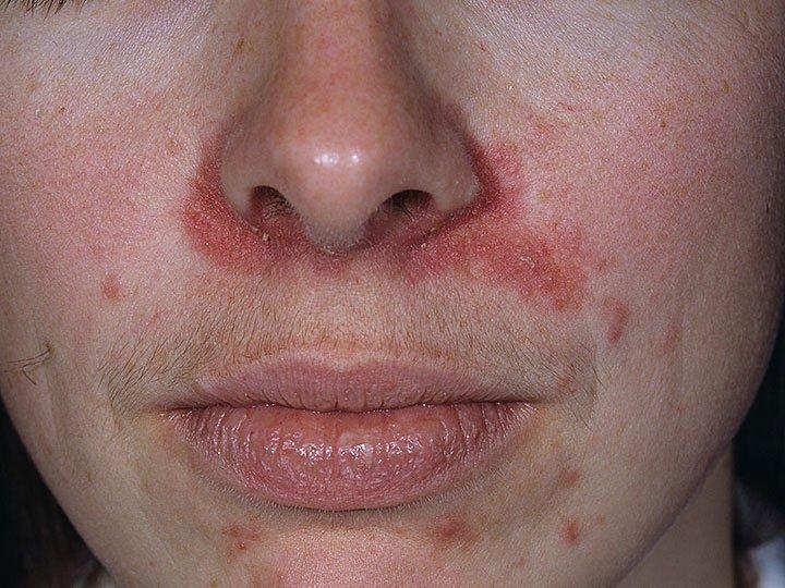 irritáció az arcon az orr körül vörös foltok formájában