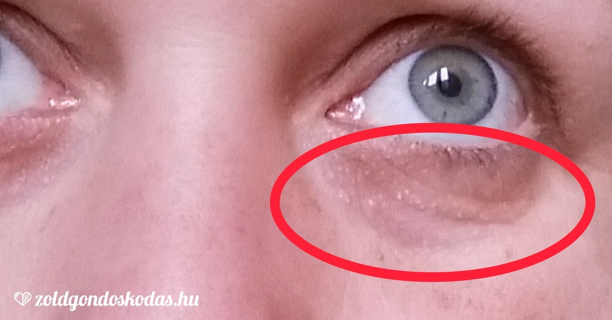 vörös folt az arcon a szem alatt