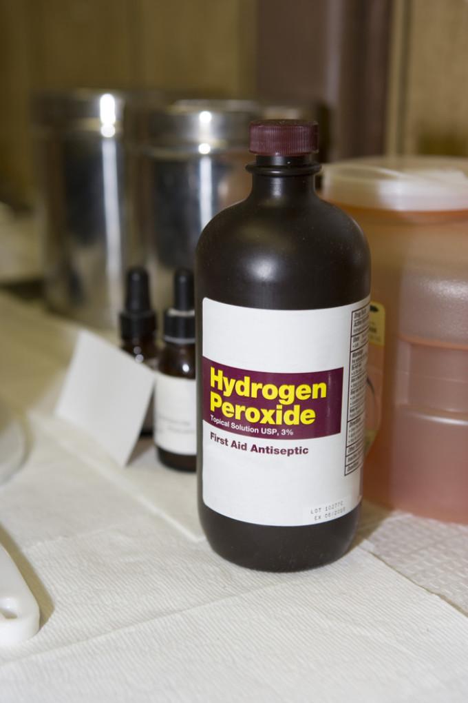 pikkelysömör fején hidrogén-peroxid kezelés