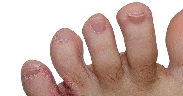 hogyan kell kezelni a vörös foltot kopás után
