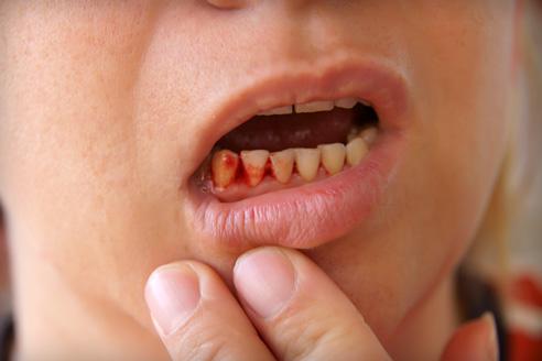 A szájüregi rákok és tüneteik   matuzalem.hu