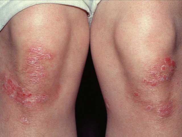 pikkelysömör, formái és kezelése a test viszket, és utána vörös foltok jelennek meg
