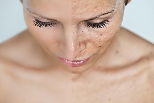 bőrbetegségek a fején vörös foltok céklával pikkelysömör kezelése