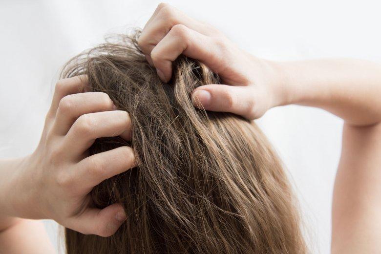 a haj kihull a fejbőrre