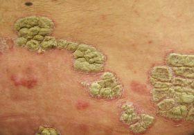 a legkorszerűbb gyógymódok pikkelysömörhöz a fej hátsó részén vörös foltok viszketnek egy felnőttnél