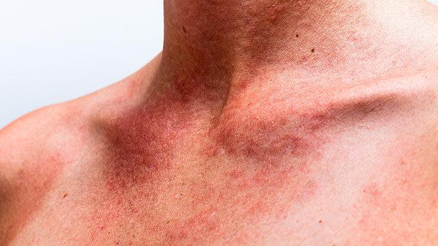 a test nagyon viszket a különböző helyeken és vörös foltokban