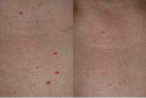 a vörös anyajegyek eltávolítása az arcon a pikkelysömör kezelésének módszerei külföldön