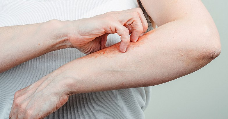 Mitől alakul ki a pikkelysömör, és mit tehetsz a tünetek ellen? - Dívány