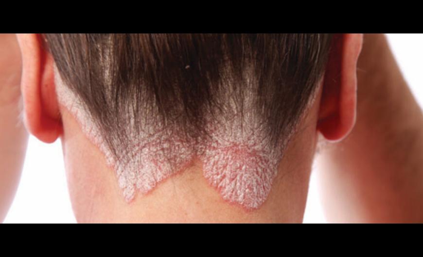 vörös foltok a bőrön úszás után Az alternatív gyógyászat gyógyíthatja a pikkelysömör