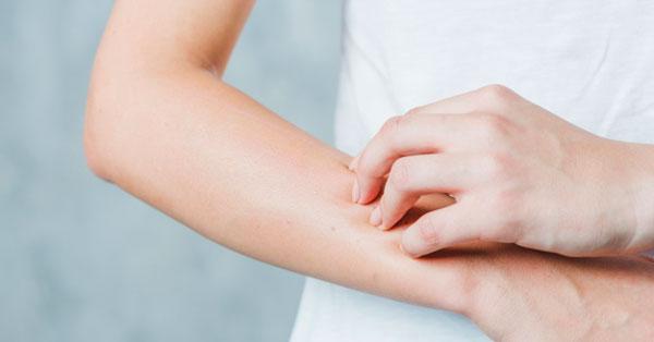 a kezén durva vörös folt viszket
