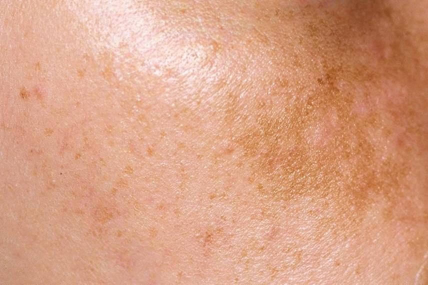 pikkelysömör kezelésére tentorium kiütés a bőrön vörös foltok formájában felnőtteknél