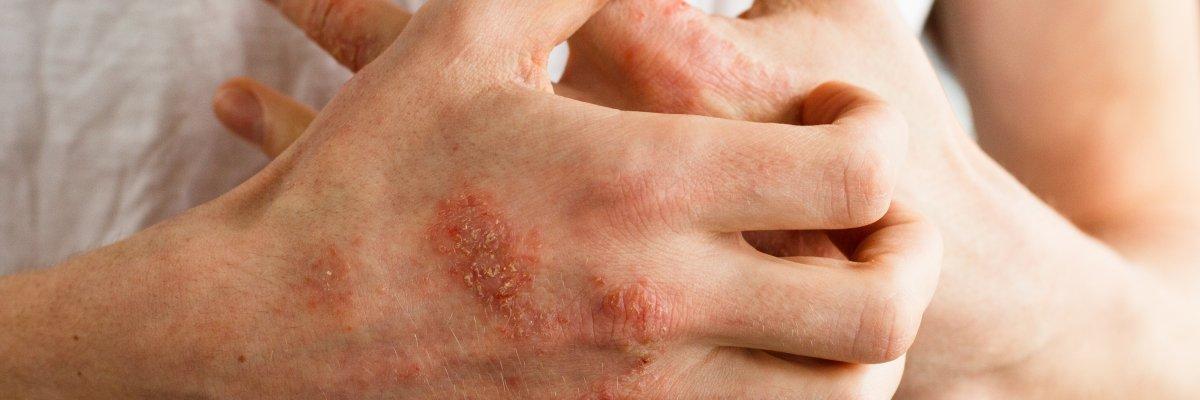 mit jelentenek a lábakon lévő vörös foltok