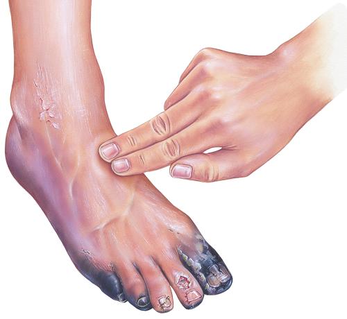 cukorbetegség és vörös foltok a lábakon