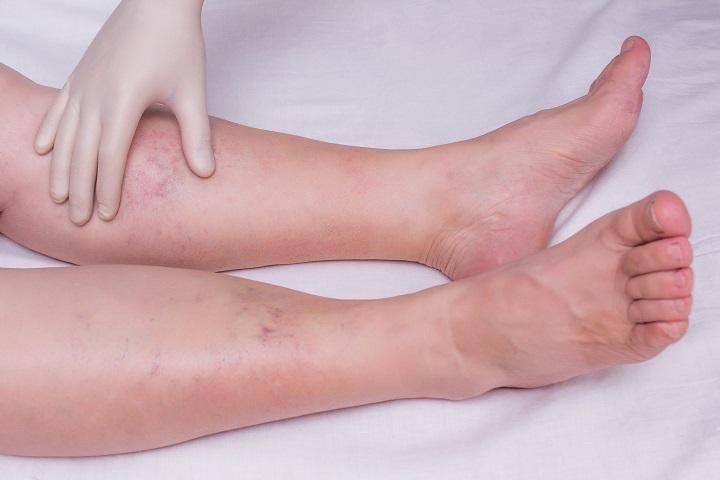 cukorbetegség vörös foltok a lábakon