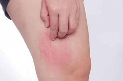 agyag kezelések pikkelysömörhöz milyen gygynvnyek pikkelysömörre a fejn