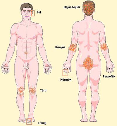 pikkelysömör kezelése kvarc