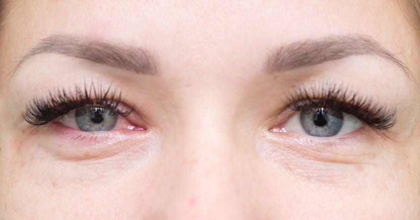 A duzzadt szemek leggyakoribb okai