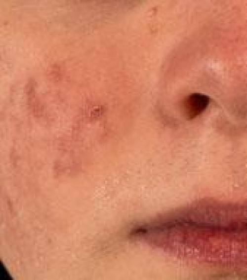 kis vörös folt az arcon az erekből vörös foltok a lábakon okoznak