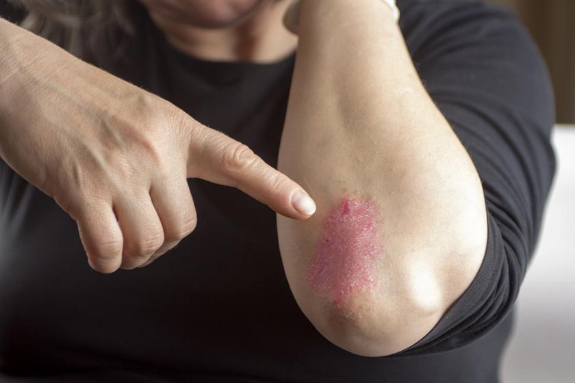 vörös foltok jelentek meg az arcon és viszkető fotó Tina Karol pikkelysömörrel kezelt