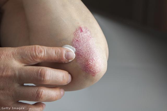 élesztő kezelés pikkelysömörhöz vörös folt jelent meg a kézen az ujjak között