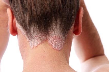 pikkelysömör kezelése az ókorban vörös foltok a karon és a nyakon