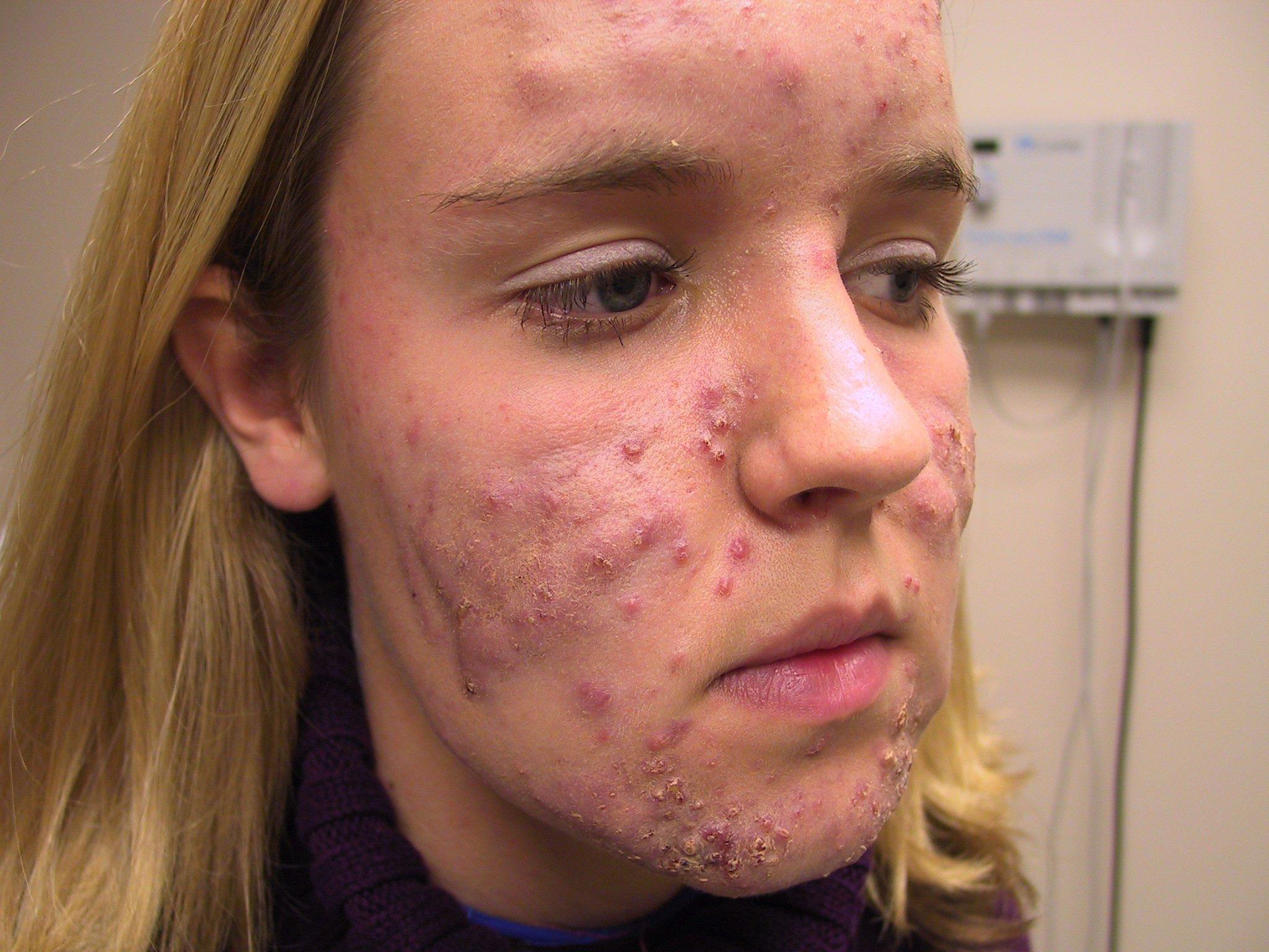 vörös foltok az arcon a pattanások kezelése után hogyan gyógyítottam meg a pikkelysömör gyógyszert
