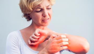 egy piros folt a lábán viszket és pelyhezik tanácsot adni a pikkelysmr kezelsre