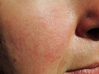 egy nagy vörös folt az arcon a lábakon lévő foltok vörösek, hasonlóak a zuzmóhoz