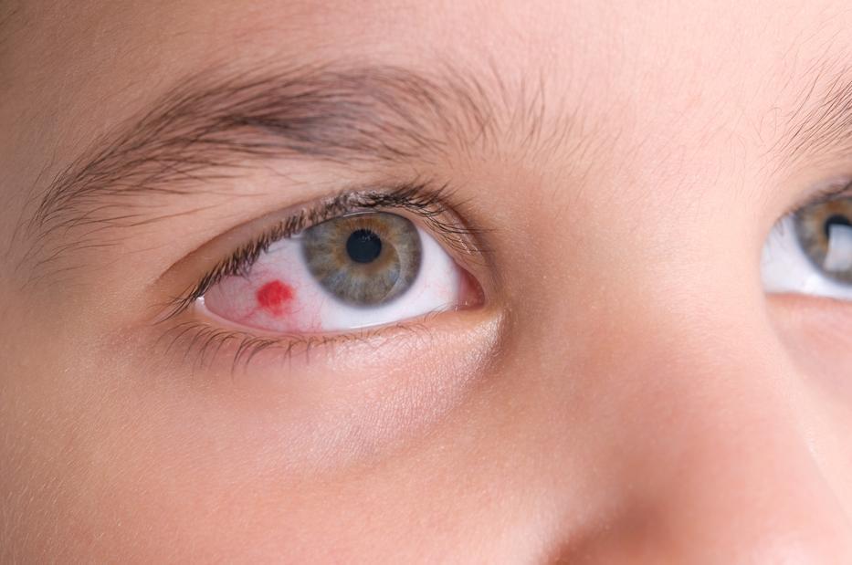 egy vörös folt jelent meg a szemhéjon, lehámozódott viszkető vörös foltok a fenéken
