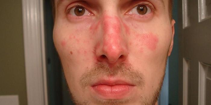 este vörös foltok jelennek meg az arcon Tiens pikkelysömör kezelése