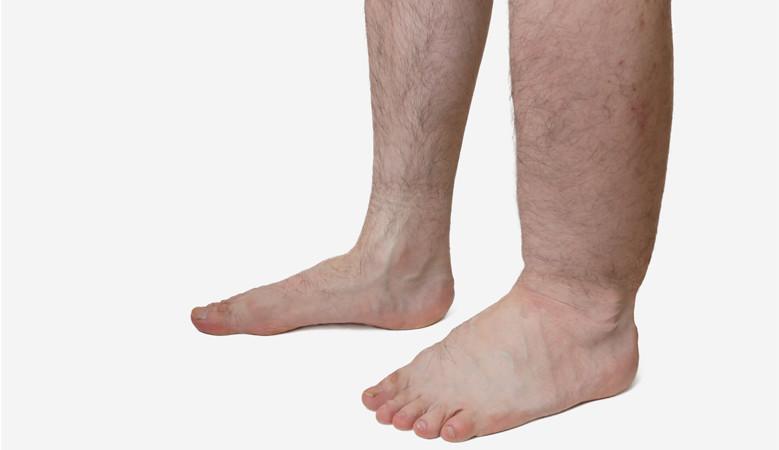 a lábakon foltok pirosak kerekek