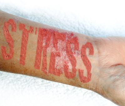 pikkelysömör kezelése holt és élő vízzel vörös fájó foltok és viszketés a fejbőrön