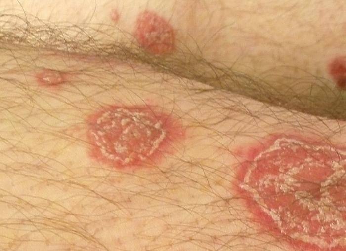 pikkelysömör kezelése homeopátiában vörös foltok jelennek meg az arcon és eltűnnek